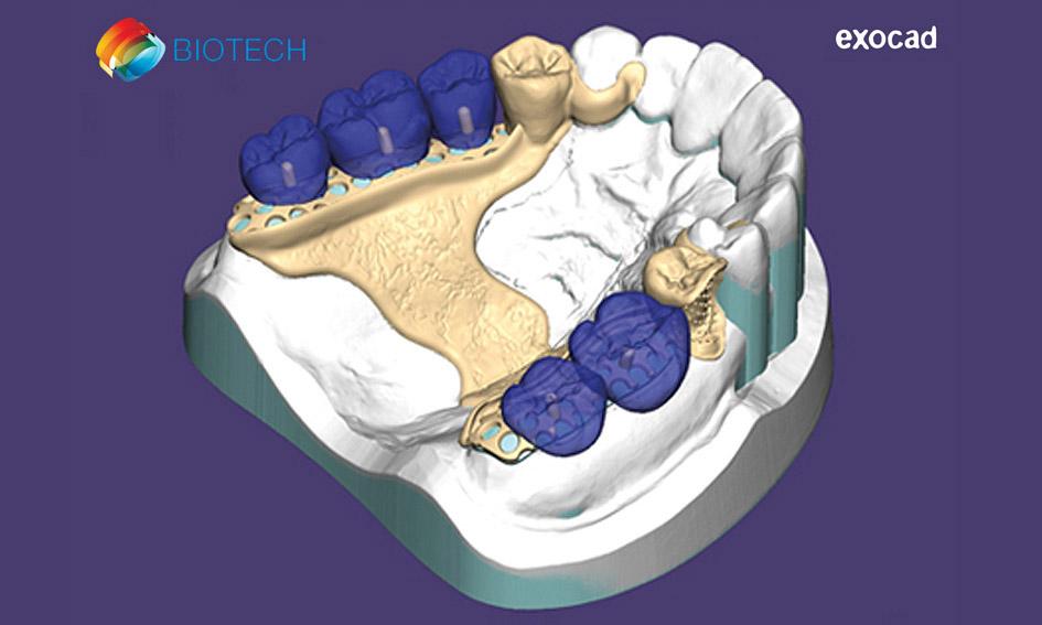 Curso básico de Exocad para protésicos dentales