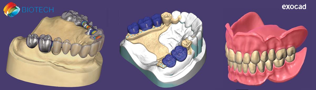 Curso de Exocad para protésicos dentales