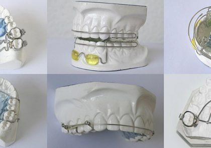 Máster de Ortodoncia en prótesis dental (Sevilla)